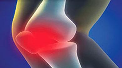 Polyethylene Orthopedic Implants